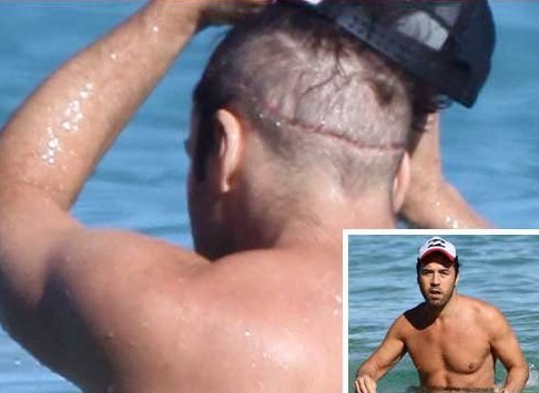 Jeremy Piven S Bad Hair Transplant Scar And How To Avoid One