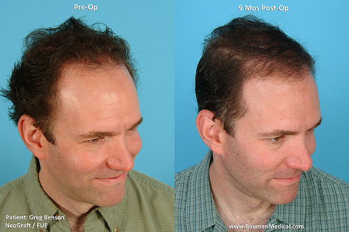 Greg Benson 9 month results after NeoGraft FUE w/ Dr. Bauman